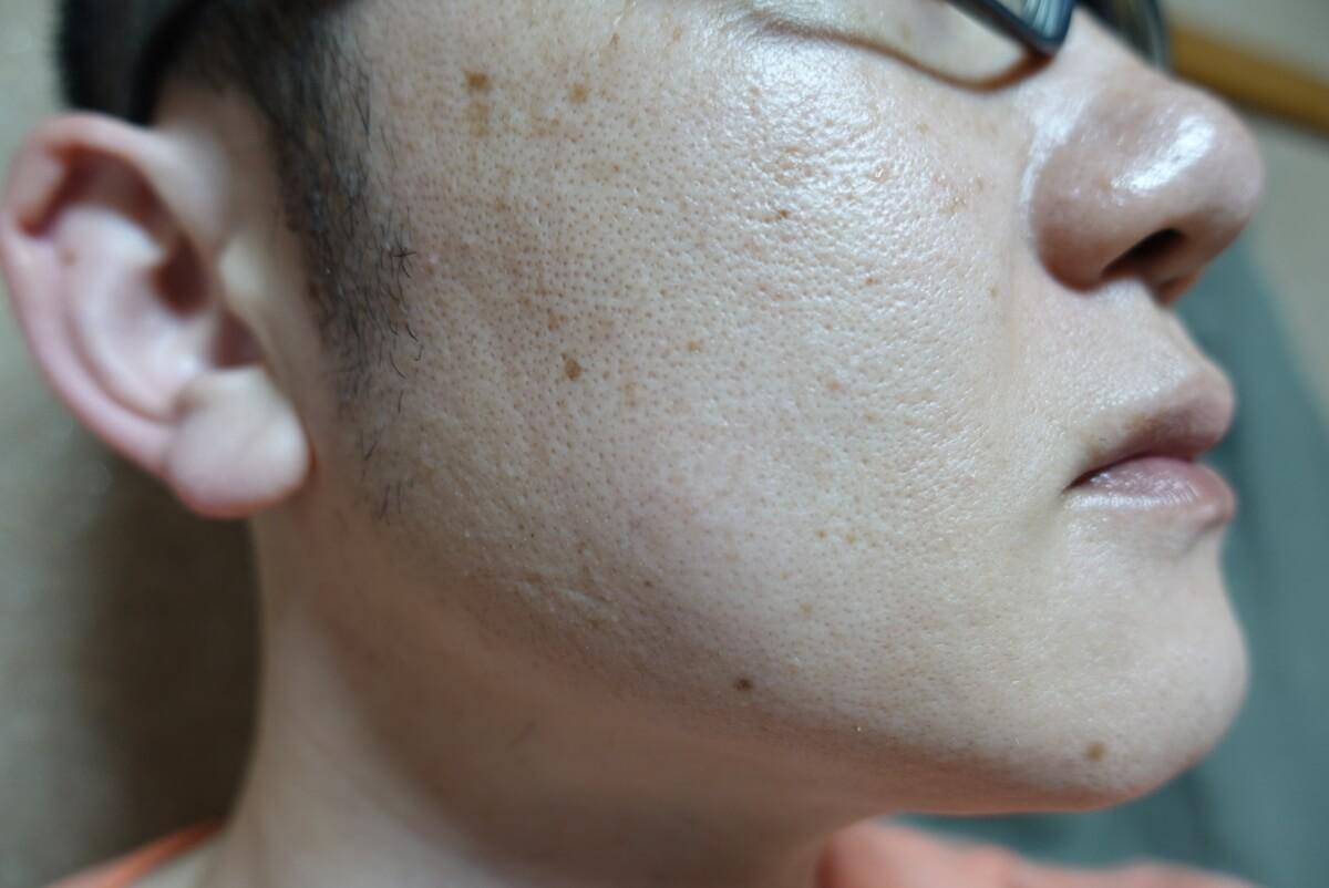 メンズリゼでヒゲ脱毛16回目施術1ヵ月後-側面(右)