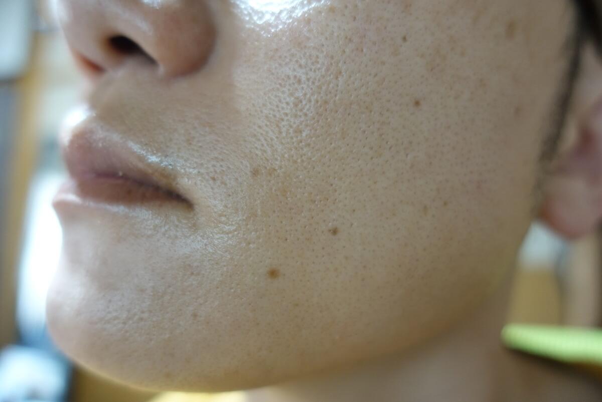 メンズリゼでヒゲ脱毛16回目施術1週間ヒゲを放置-側面(左)