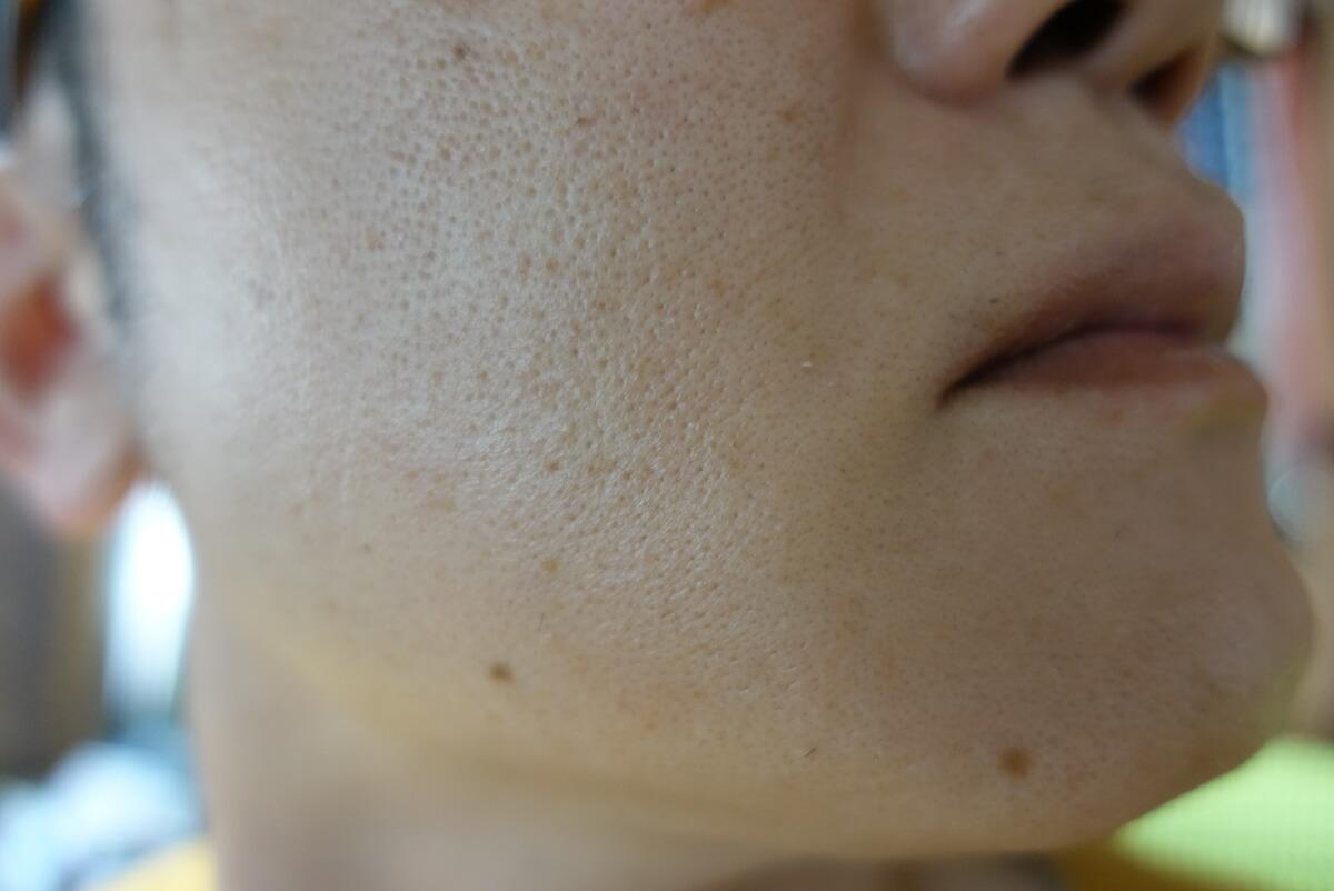 メンズリゼでヒゲ脱毛16回目施術1週間ヒゲを放置-側面(右)