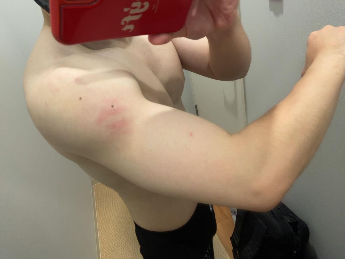 コロナワクチン接種後の腕